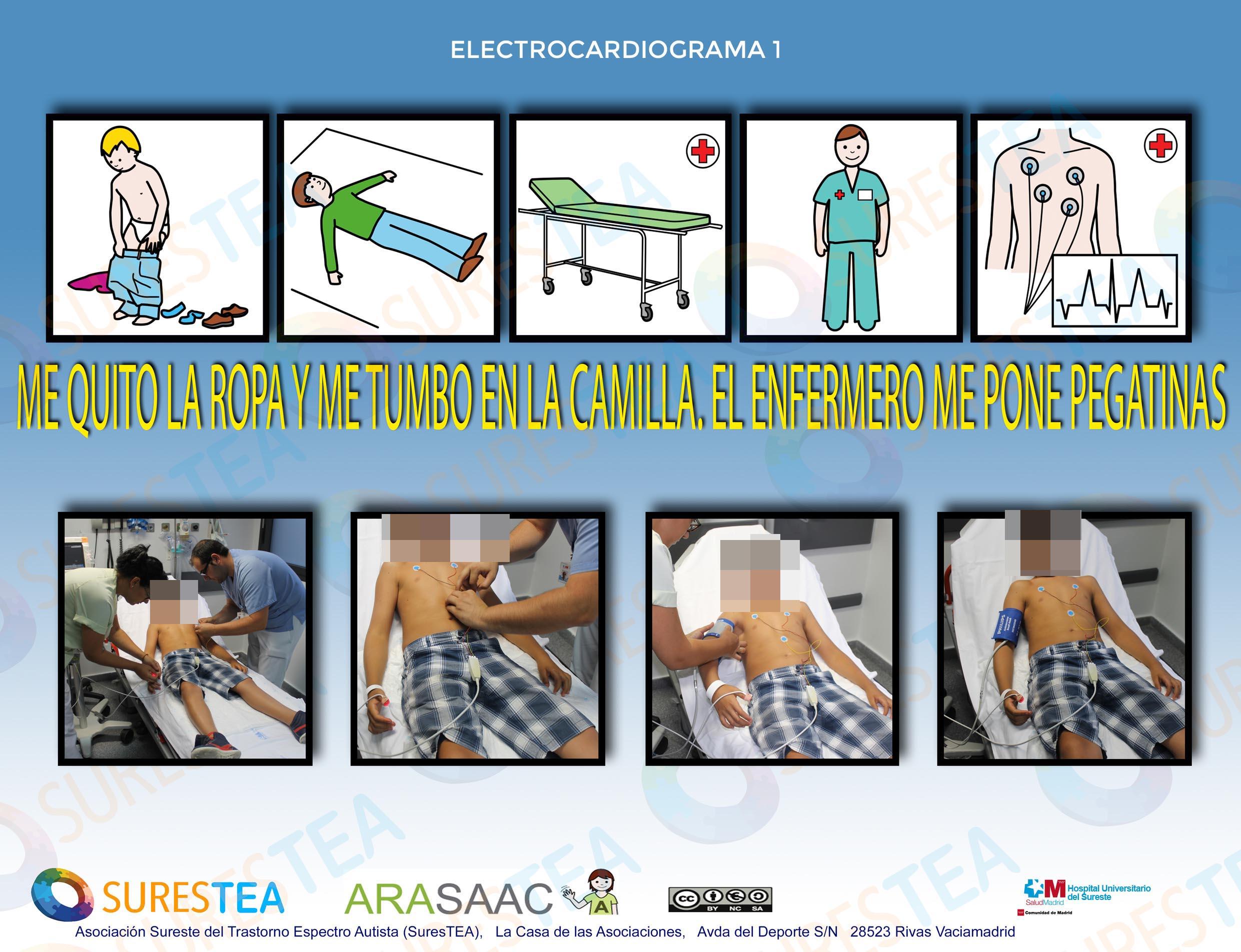 Electrocardiograma1